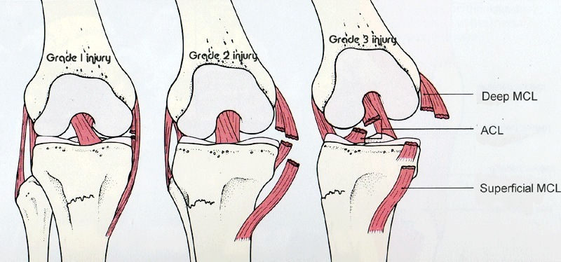 ondt i knæet på indersiden