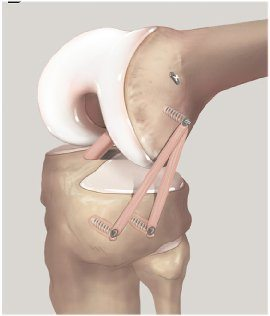 Anterolateral ligament rekonstruktion