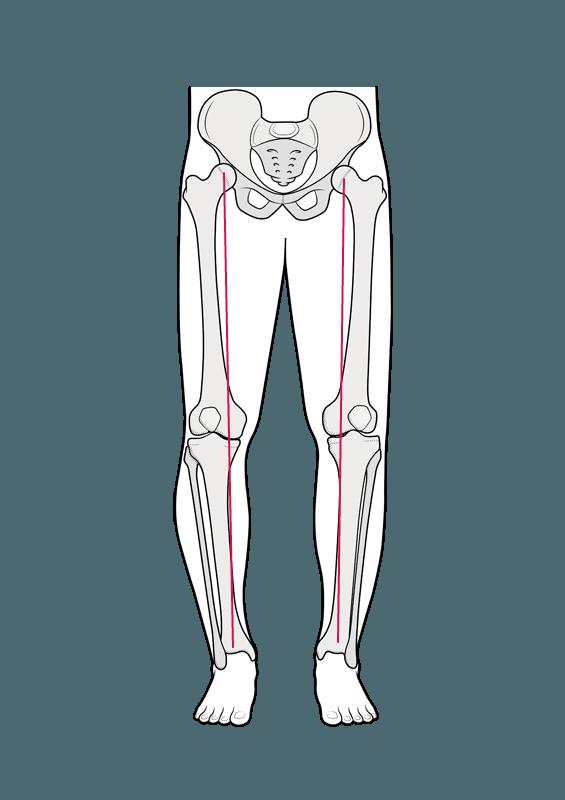 Billedet viser at belastningen går på indersiden af knæet
