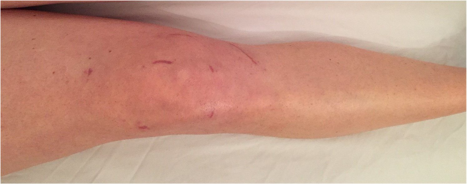 The scars after Arthroscopic Trochleoplasty and reconstruction of the medial patellofemoral ligament eight weeks postoperatively