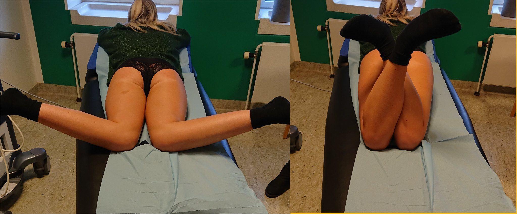 Anteversion of hip